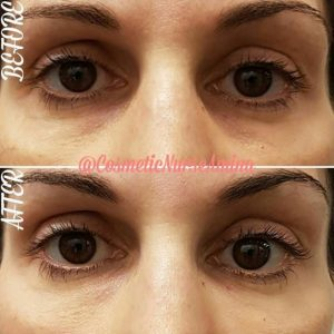 Eye trough injections before and after