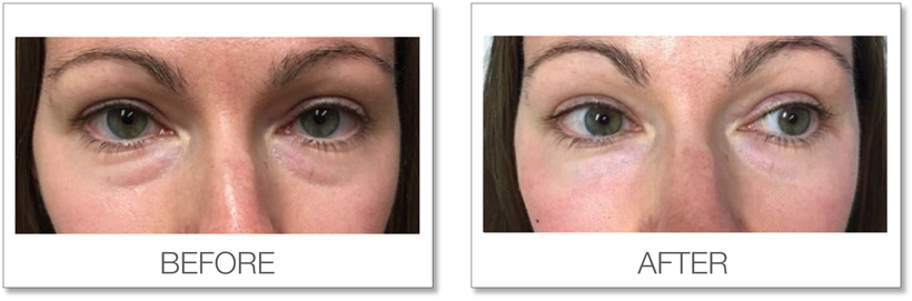 Redensity II before and after patient results