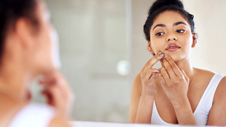 Dr. Lista Uncovers the Myths and Truths About Acne