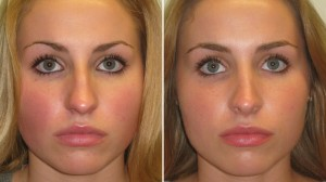 before-after-nose-reshaping
