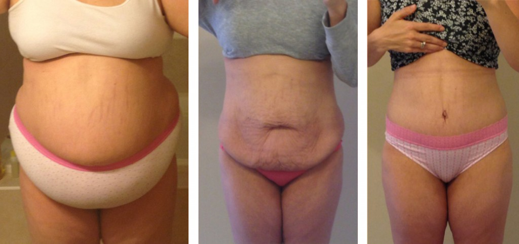 tummy-tuck-after-significant-weight-loss