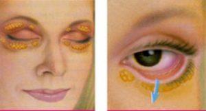 Eyelid Lift Operation| The Plastic Surgery Clinic