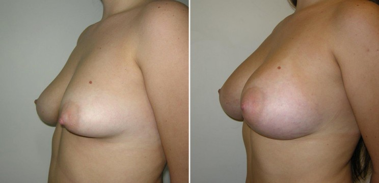 Correct tuberous breast deformity with implants