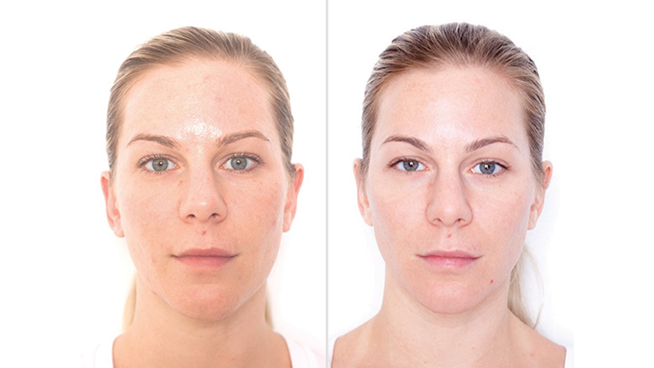 After 3 peel treatments and 10 weeks using Miracle 10 skincare