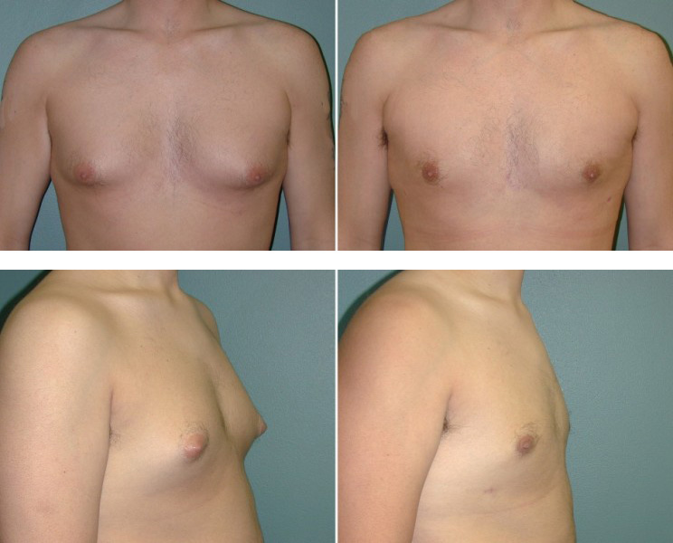 Male Breast Reduction Before & After Photos
