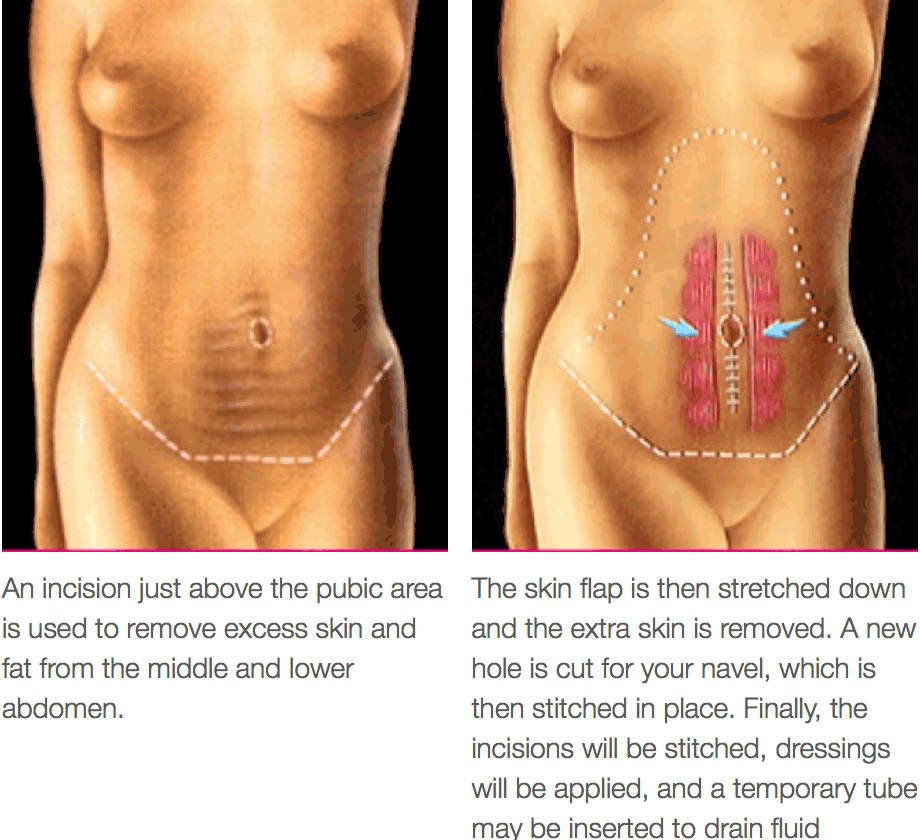 Tummy Tuck All You Should Know The Plastic Surgery Clinic