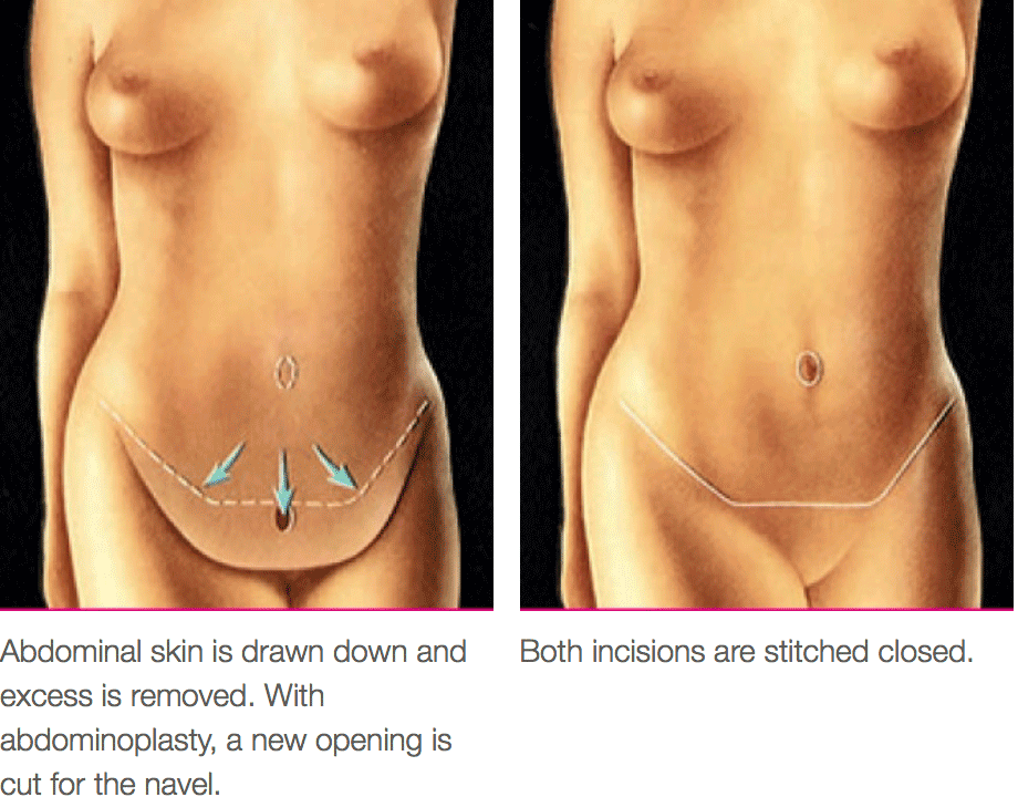Tummy Tuck Procedure Diagram