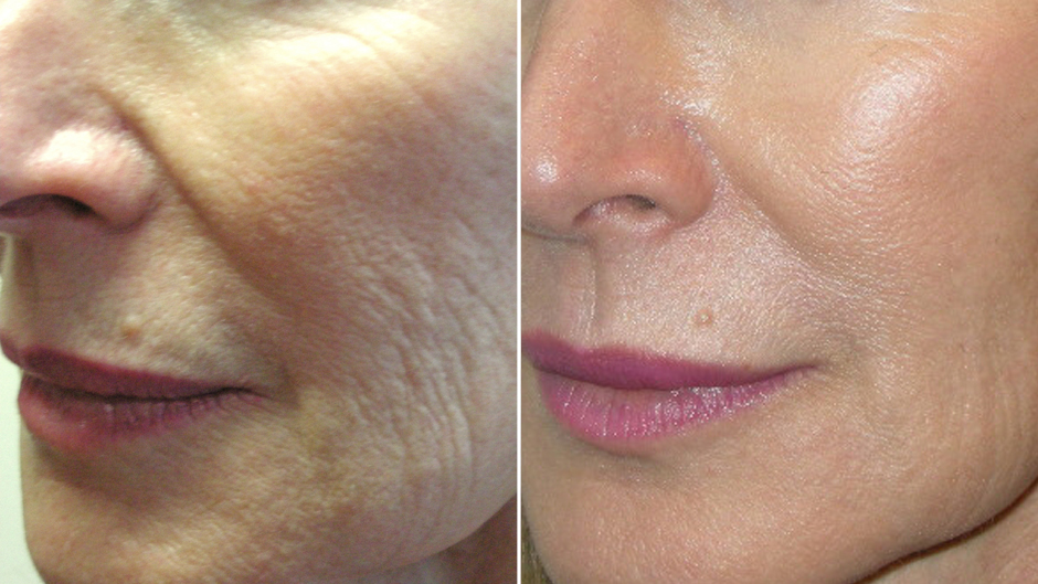 Laser Skin Treatments Before & After Photos