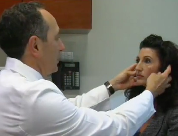 Dr. Lista Describes Facelift Surgery