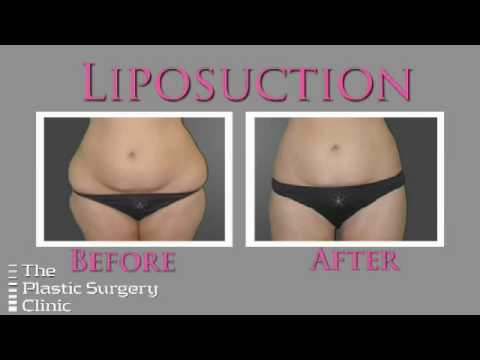 Dr. Lista on Liposuction