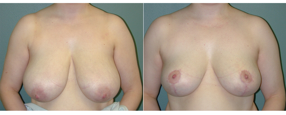 Breast reduction patient before and after