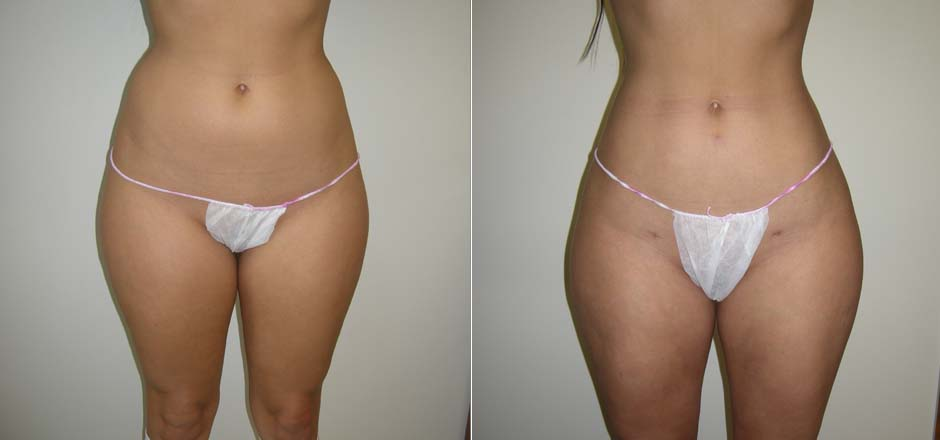 All About Liposuction The Plastic Surgery Clinic