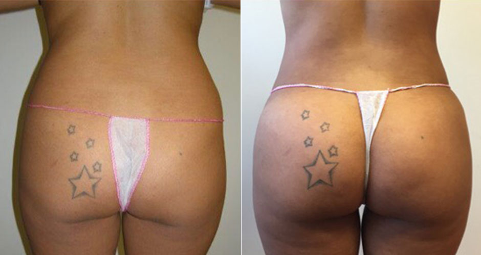 Brazilian Butt Lift Before & After Photo
