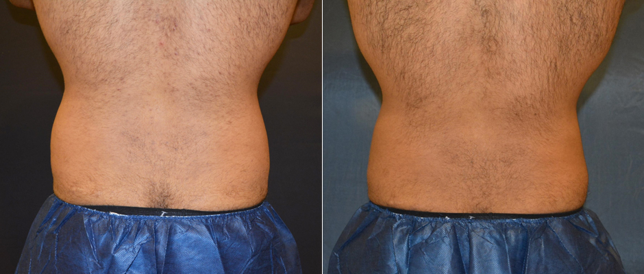 CoolSculpting for Men Before & After Photo