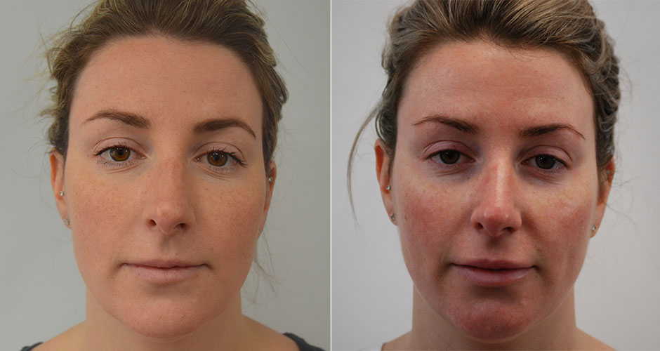 Dermal Fillers Before & After Photos | The Plastic Surgery