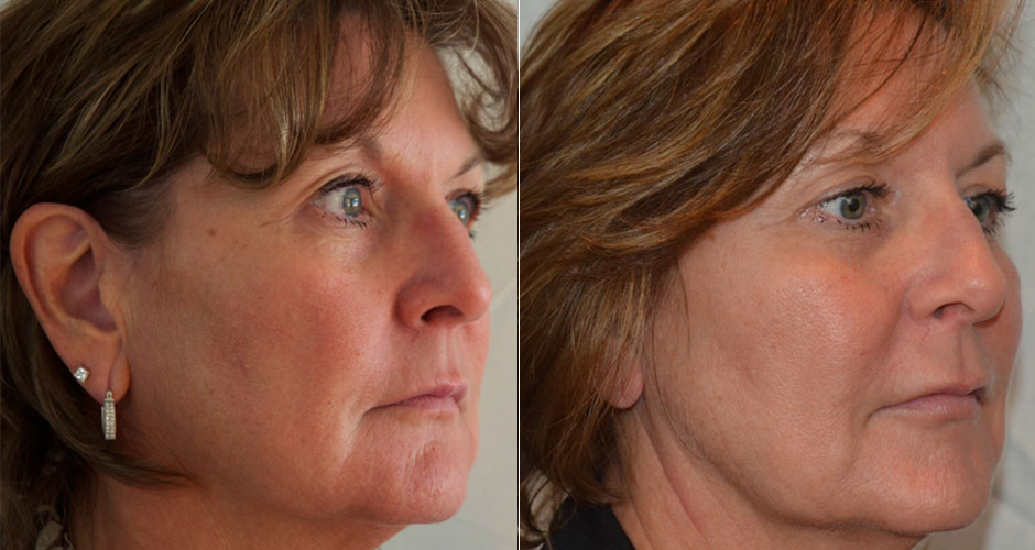 Dermal Fillers Before & After Photos   The Plastic Surgery