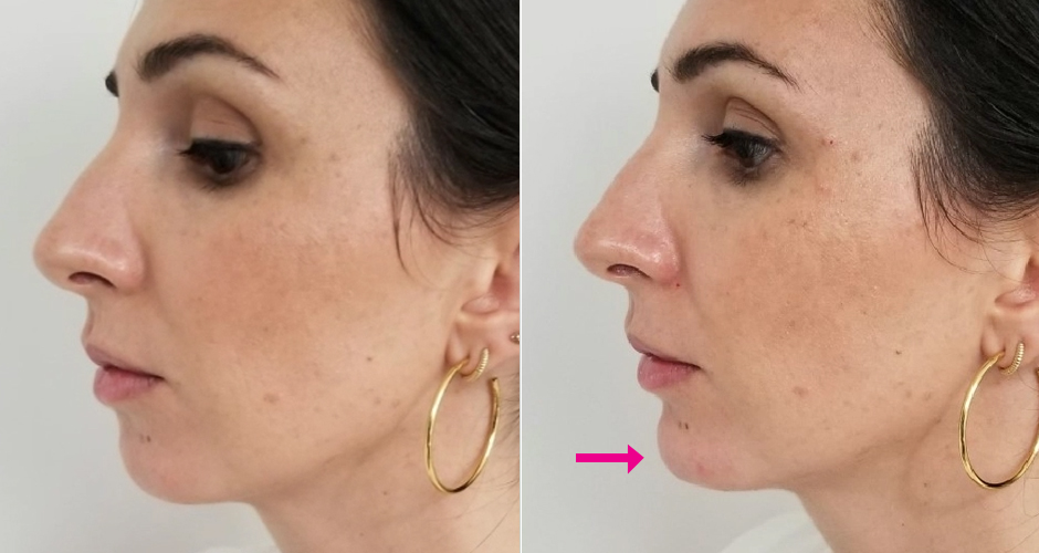 Dermal Fillers Before & After Photos