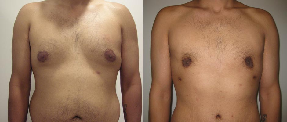 Gynecomastia Surgery Male Breast Reduction The Plastic Surgery