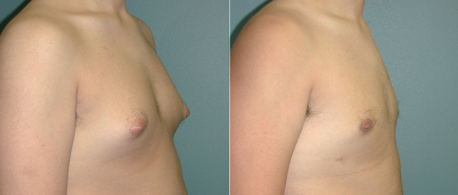 Gynecomastia Before & After Photo