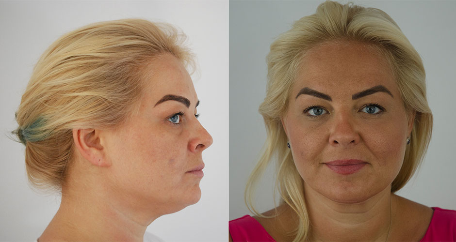 Anti-Wrinkle Injections | The Plastic Surgery Clinic