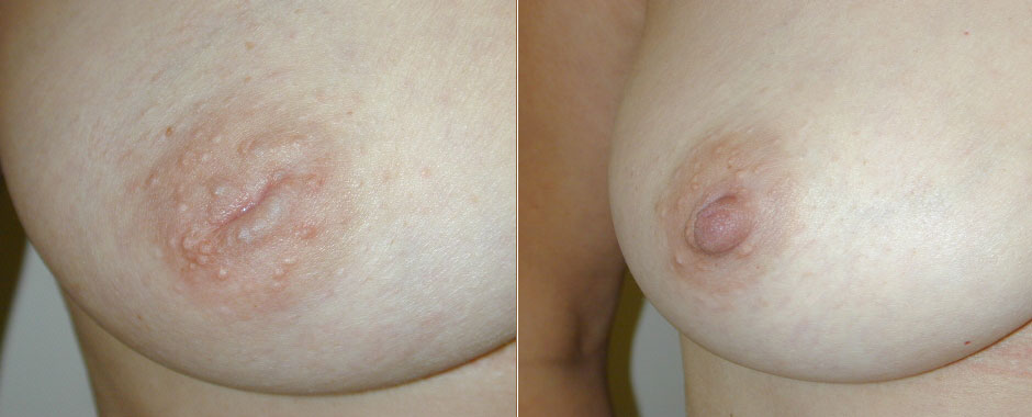 Inverted Nipple Before & After Photo