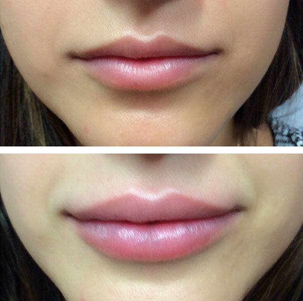 Lip Injections Before & After Photo