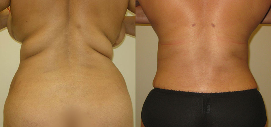fb2049b79a Liposuction Before   After Photo