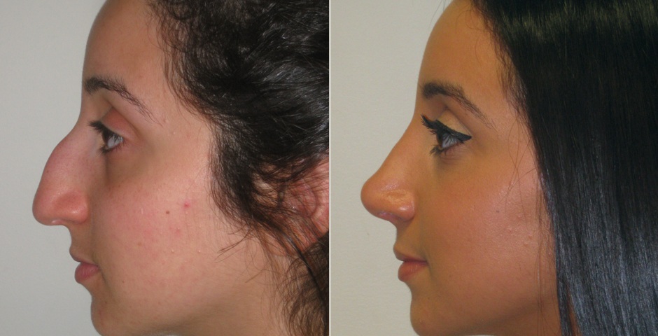 Rhinoplasty aka Nose Job: Info Page | The Plastic Surgery Clinic