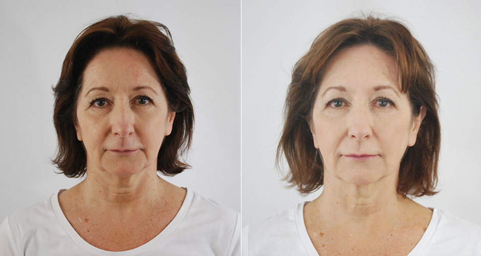 Soft Lift Facial Rejuvenation Before After Photos