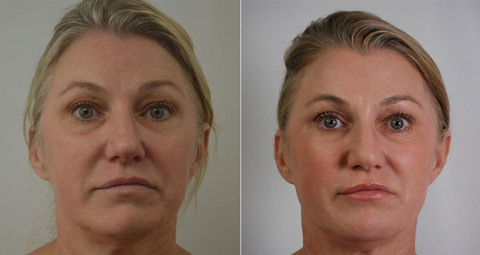 Non-Surgical Face Lift | The Plastic Surgery Clinic