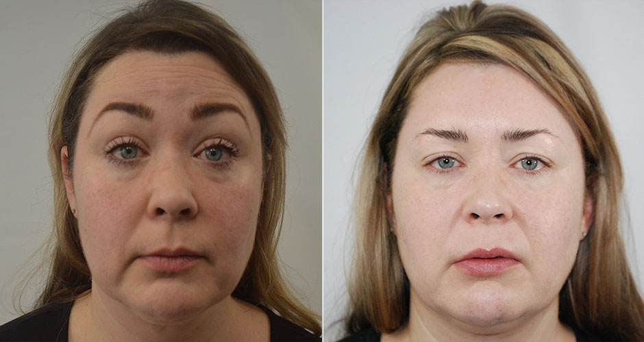 SoftLift Facial Rejuvination Before & After Photo