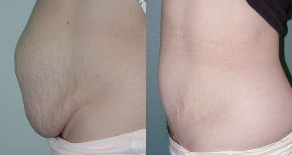 Tummy Tuck: All You Should Know | The Plastic Surgery Clinic