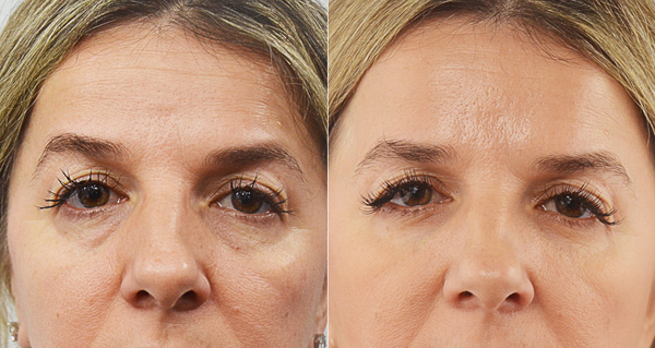 Redensity II Under Eye Filler
