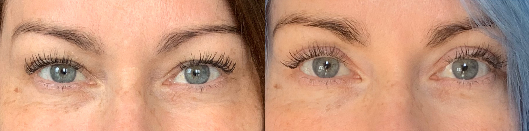 Eyelid Lift Before and After Patient