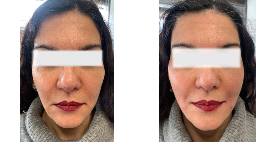 Thread Lift Before & After Photo